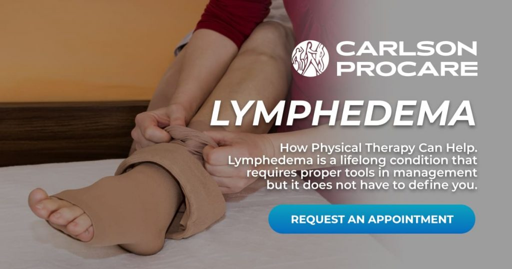 Lymphedema - Carlson ProCare Therapy